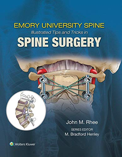 Emory's Illustrated Tips and Tricks in Spine Surgery (English Edition)