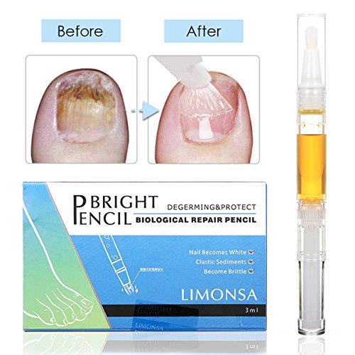 Nagel Öl, nagelhautöl Nail Treatment Clear Fußpilzbehandlung für Zehennägel & Fingernägel Lösung Nagelpflege gegen Nagelpilz für helle Nägel