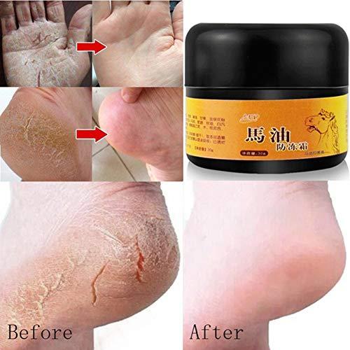 Füße Hautpflege Creme, KISSION Fußpflege Creme Cracked Heel Balsam Creme Hilfe mit Fuß Jock Juckreiz und Pilz Infektionen Reparatur Nourish Trockene Cracked Feet (30ml) (A)