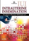 IUI: Intrauterine Insemination