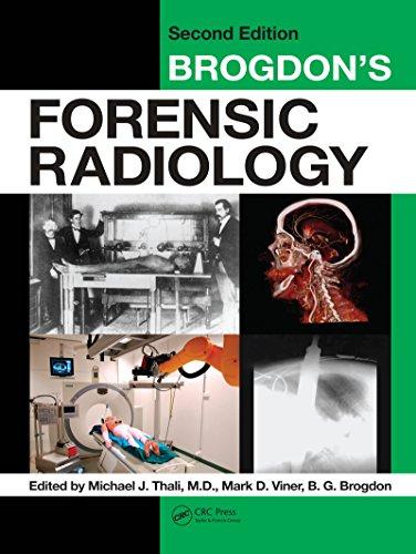 Brogdon's Forensic Radiology (English Edition)