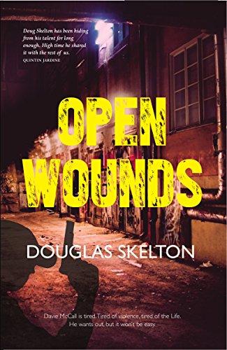 Open Wounds (Davie McCall 4)