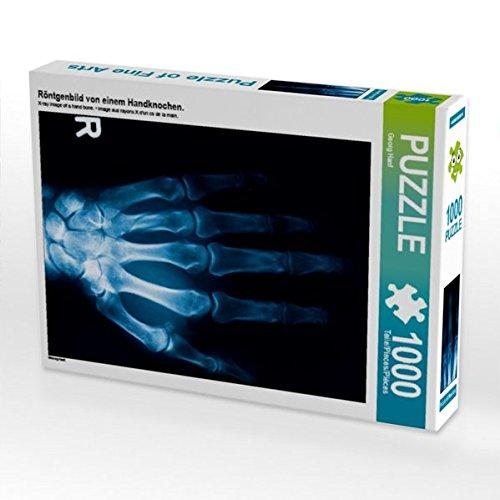 Röntgenbild von einem Handknochen. 1000 Teile Puzzle hoch