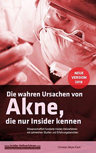 Die wahren Ursachen von Akne, die nur Insider kennen