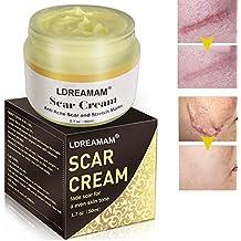 Narbencreme,Scar cream,Narbe gel,Scar Treatment,LDreamAM® Scar Fade Cream für Gesicht und Körper - Behandeln Sie neue und alte Narben - Aknenarben,Dehnungsstreifen und Narben für Frauen und Männer