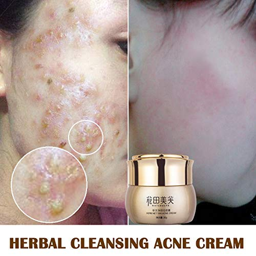 Fishyu Herbal Cleansing Acne Cream Improve Acne Marks Oil Control Go Acne Cream - Herbal Day Creme