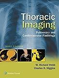 Image de Thoracic Imaging: Pulmonary and Cardiovascular Radiology