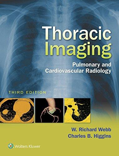 thoracic-imaging-pulmonary-and-cardiovascular-radiology