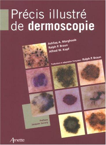 Précis illustré de dermoscopie