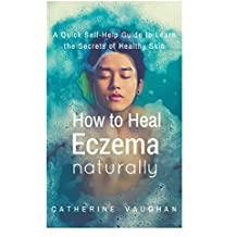 How to Heal Eczema Naturally: A Quick Self-Help Guide to Learn the Secrets of Healthy Skin.