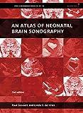 An Atlas of Neonatal Brain Sonography: 182-183 (Clinics in Developmental Medicine)