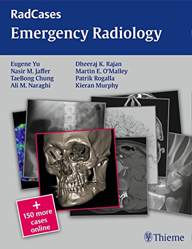 Emergency Radiology (Radcases) by Eugene Yu (28-Feb-2014) Paperback