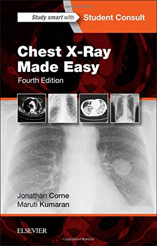 chest-x-ray-made-easy