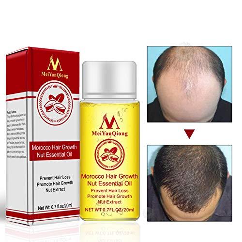 Morocco Haarwuchs Nuss ätherisches Öl Schwarz und Glänzt Behandlung Gegen Haarausfall Fördern Haarwachstum Öl für Männer und Frauen (A)