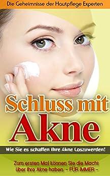 Schluss mit Akne!: Wie Sie es schaffen Ihre Akne loszuwerden!