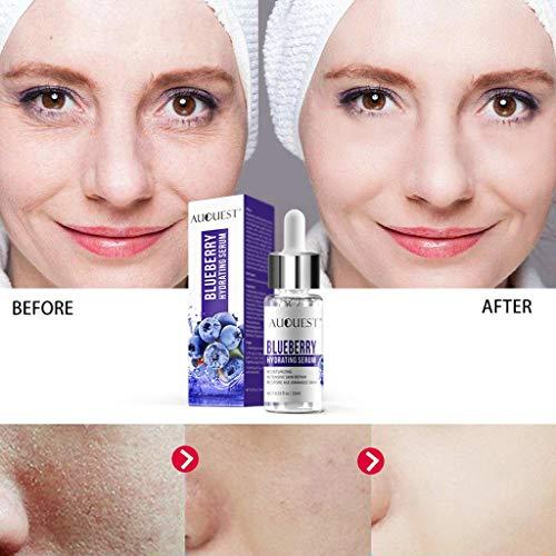 Gaddrt poro di restringimento idratante e anti-invecchiamento della soluzione di polipeptide di mirtillo per rughe/linee, macchie di età/lentiggini (15ml)