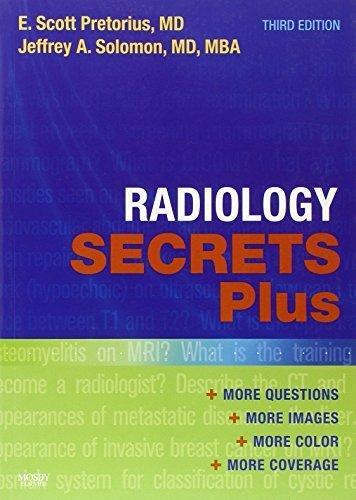 Radiology Secrets Plus, 3e 3rd Edition by Pretorius MD, E. Scott, Solomon MD MBA, Jeffrey A. (2010) Paperback