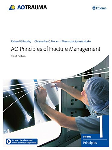 AO Principles of Fracture Management: Vol. 1: Principles, Vol. 2: Specific fractures (English Edition)
