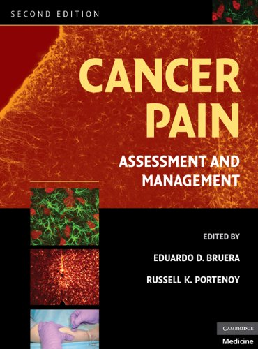 Cancer pain assessment and management ebook eduardo d bruera cancer pain assessment and management ebook eduardo d bruera russell k portenoy amazon kindle store fandeluxe Images