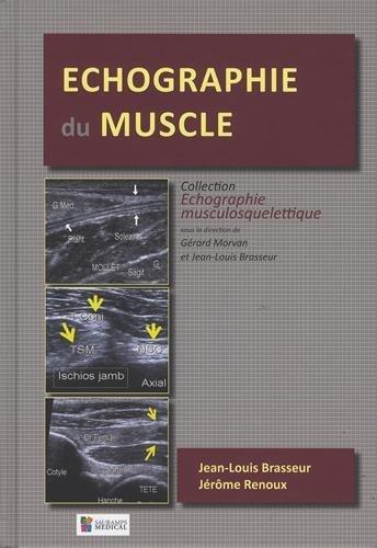 Echographie du muscle