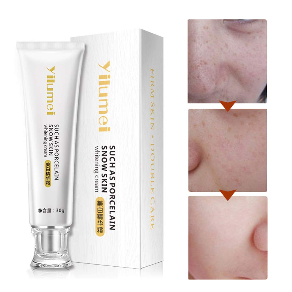 Crema facial antimanchas, crema blanqueadora, reafirmante, nutritiva, reparadora e hidratante para la cara, 30 g