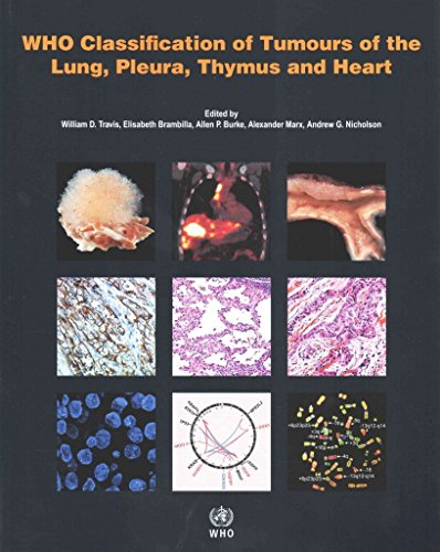 [(WHO Classification of Tumours of the Lung, Plura, Thymus and Heart 2015)] [By (author) International Agency for Research on Cancer ] published on (April, 2015)