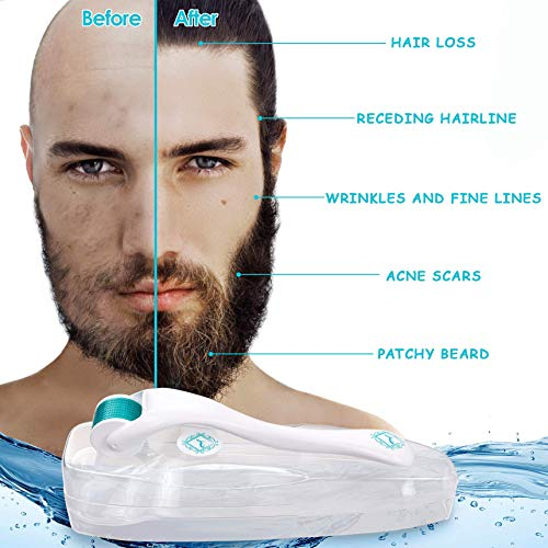 ALPHALUXY-Best-Microneedle-Derma-Roller-for-Hair-Beard-Growth-and-Acne-Scar-Treatment-Stimulate-Collagen-Elastin-Professional-Titanium-Dermaroller-No-more-Patchy-Beard-Hair-Loss-or-Scars