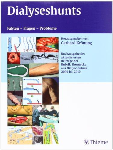 Dialyseshunts: Fragen, Fakten, Probleme - Buchsonderausgabe Sonderdrucke aus Dialyse Aktuell