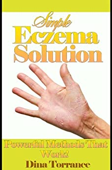 Simple Eczema Solution (Eczema Treatment Guide Book 1) by [Torrance, Dina]