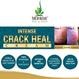 **INTENSE CRACK HEAL CREAM**. Visible Results in just 4 Days. 100% Ayurveda