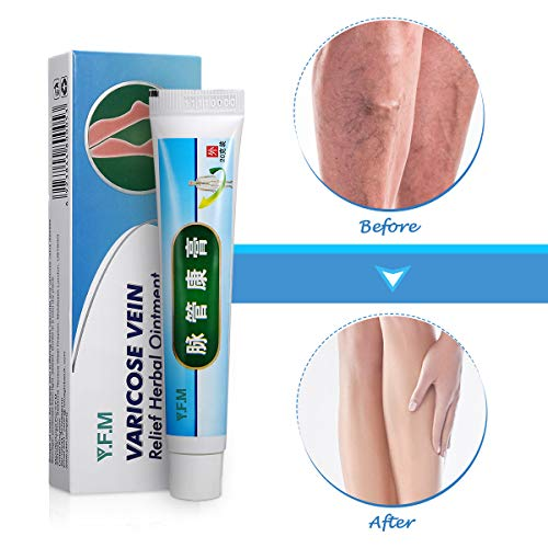 Krampfadern Creme, Y.F.M natürliche Pflanzliche Kräuter Beinpflegecreme, Beine Care Safe Herbal Cream, Varicose Vein Cream, Muskelschmerzen lindern, sanften Beinpflege 20g -