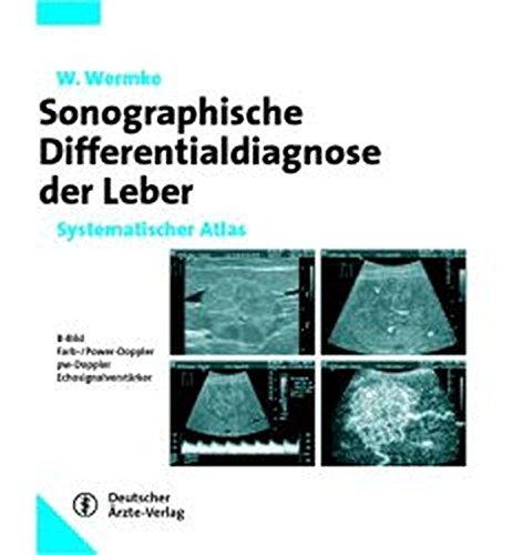 Sonographische Differenzialdiagnose Leberkrankheiten: Systematischer Atlas