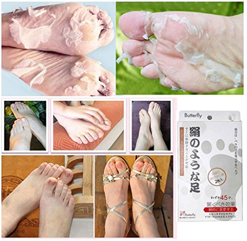 malloom-2017-1pair-exfoliating-peel-foot-mask-baby-soft-feet-remove-callus-hard-dead-skin