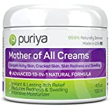 Puriya Cream For Eczema, Psoriasis, Rosacea, Dermatitis, Shingles and Rashes. Powerful 13-in-1 Natural Formula Provides Instant and Lasting Relief For Severely Dry, Cracked, Itchy, or Irritated Skin (4.5 oz)