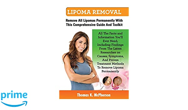 Buy Lipoma Removal, Lipoma Removal Guide  Discover All the