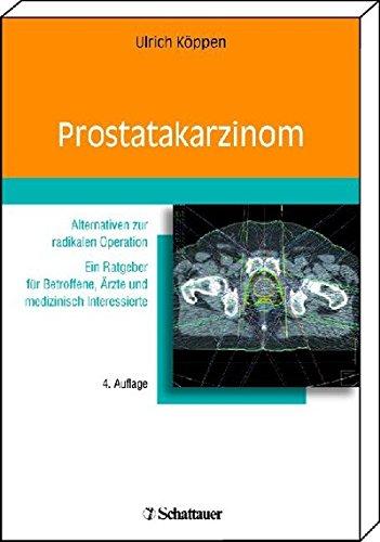 Prostatakarzinom: Alternativen zur radikalen Operation. Ein Ratgeber für Betroffene, Ärzte und medizinisch interessierte Leser