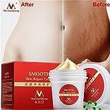 Best Scar Crèmes - ILOVEDIY crème vergetures grossesse efficace Cicatrice post-partum Acne Review