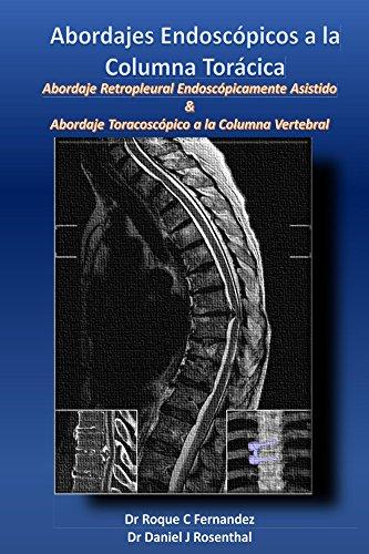 Abordajes Endoscopicos a la Columna Toracica: Abordaje Retropleural Endoscópicamente Asistido & Abordaje Toracoscópico a la Columna Vertebral (English Edition)