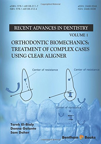 Orthodontic Biomechanics: Treatment Of Complex Cases Using Clear Aligner (Recent Advances in Dentistry)
