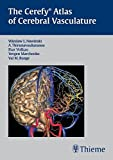 Cerefy Atlas of Cerebral Vasculature Bild