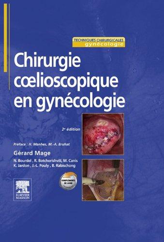 Chirurgie cœlioscopique en gynécologie
