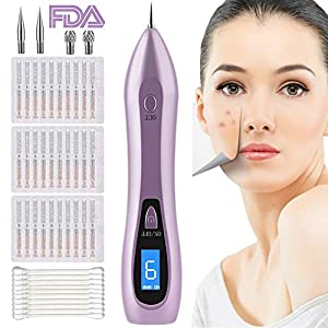 Skin Tag Removal, OKEEY Mole Removal Pen with 9 Strength Levels, LCD Display spot remover for Tattoo Warts Nevus Dark Spots Freckles with USB Rechargeable and Replaceable Needles
