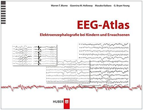 Blumen Medizinischen (EEG-Atlas: Elektroenzephalografie bei Kindern und Erwachsenen)