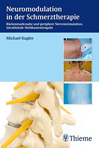Neuromodulation in der Schmerztherapie: Epidurale und subkutane Nervenstimulation - Intrathekale Medikamentengabe