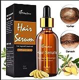 MayBeau Haarwachstum Haar Wachstum Serum aus natürliche Kräuteressenz Hair Growth Repair Oil Serum für Anti Haarausfall und Haar-Behandlung, 50ml