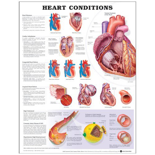 Heart Conditions Anatomical Chart: (unmounted)