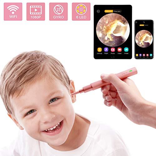 Cámara de oído, 1080P FHD Wireless Ear Wax Removal endoscopio, Super Light Lens WiFi Ear Endoscope...