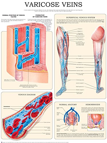 Varicose veins e-chart: Quick reference guide (English Edition) (Flow Blood Chart)