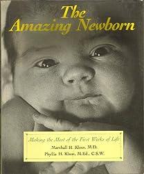 The Amazing Newborn