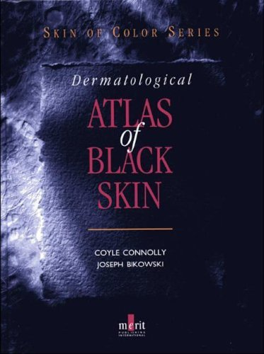 Dermatological Atlas of Black Skin (Skin of Color) by Coyle Connolly (2006-07-12)